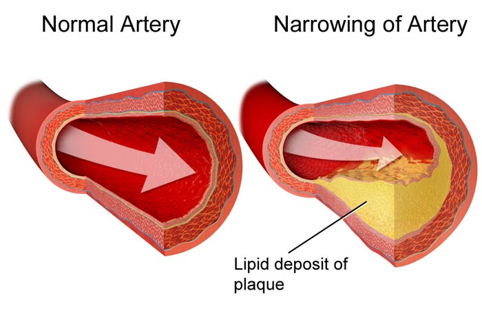 Ischaemic-Coronary-ArteryDisease
